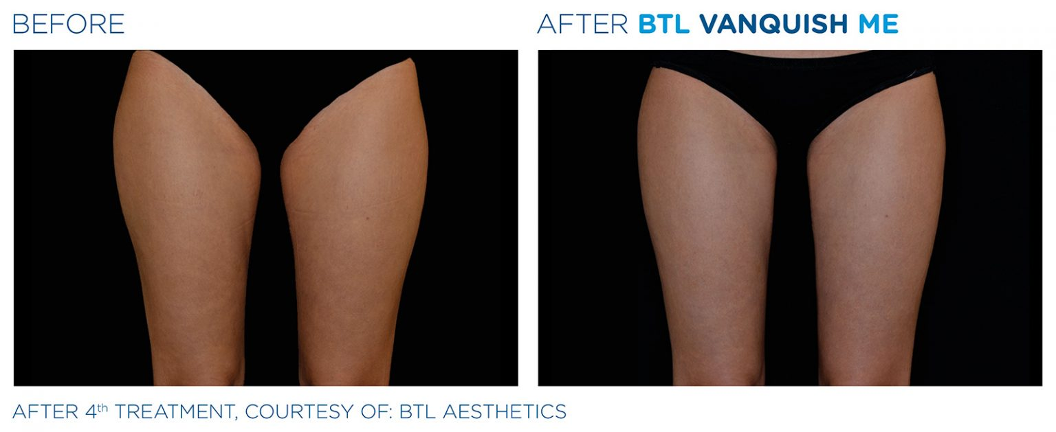 Before and after BTL Vanquish ME female legs weight loss results Burbank
