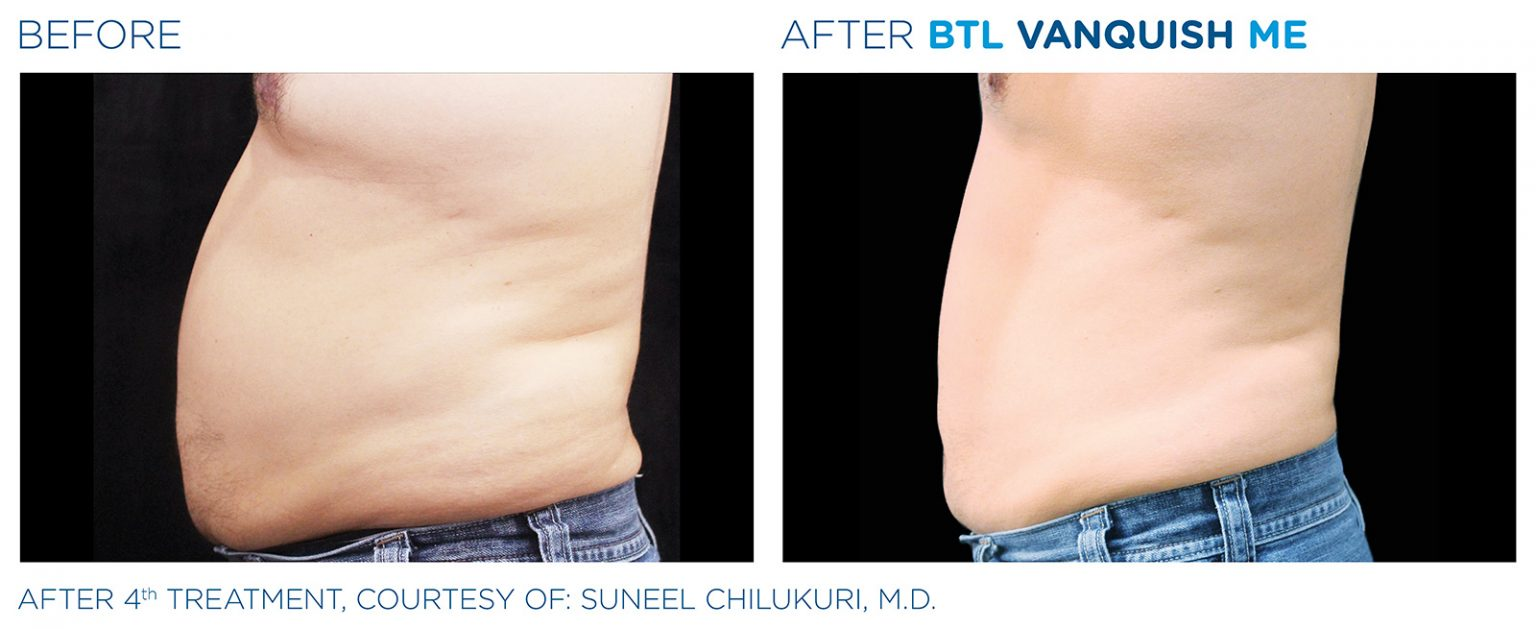 Before and after BTL Vanquish ME male abdomen weight loss results Los Angeles