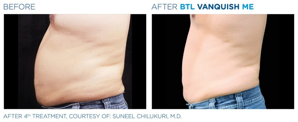 Before and after BTL Vanquish ME male abdomen weight loss results Valencia