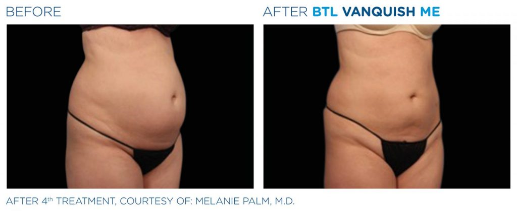 Before and after BTL Vanquish ME female abdomen weight loss results Valencia